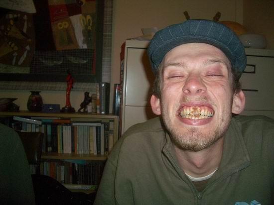 Choco-teeth.jpg